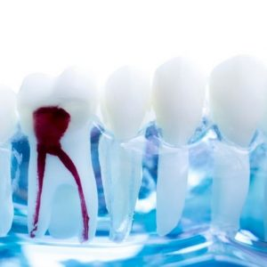 root-canal-treatment-penrith
