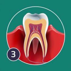 aggressive-periodontis-300x300