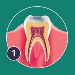 gingivitis-300x300