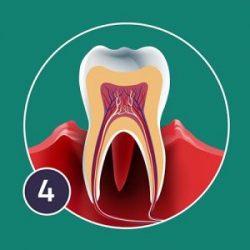 necrotising-periodontis-300x300