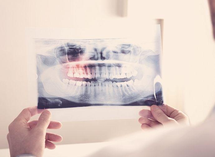wisdom-teeth-exam