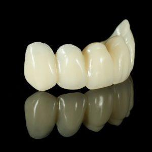 dental-bridge-penrith