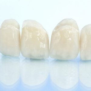 dental-crowns-penrith