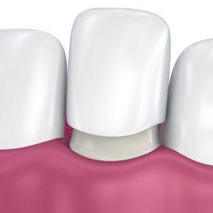 dental-veneers-penrith